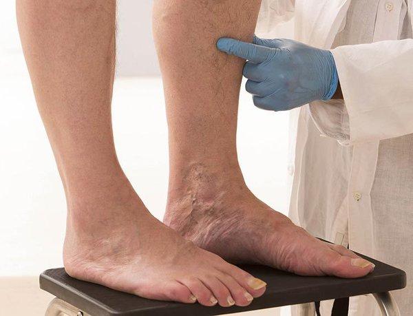 Лечение варикоза народными методами варикоз,здоровье,народная медицина