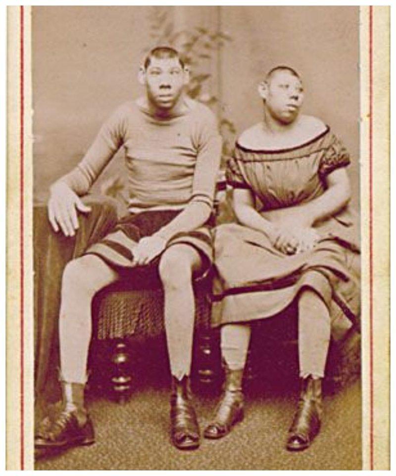 В 19 веке эти фотографии продавались как открытки. Можно было послать родственникам весточку... исторические снимки, странности, страшно, фото, цирк уродов