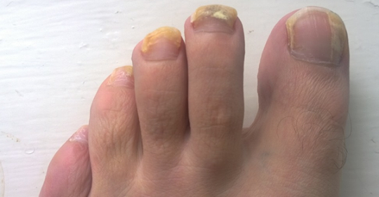 В чем причина толстых ногтей на ногах?
