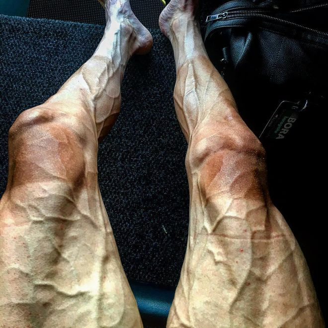 ноги Павла Поляньского
