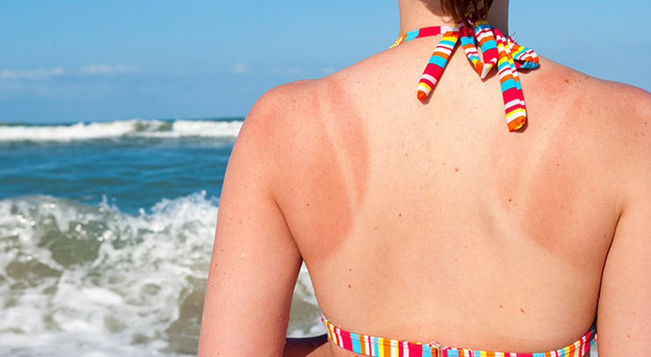 Солнечный ожог: 6 лайфхаков, как от него избавиться