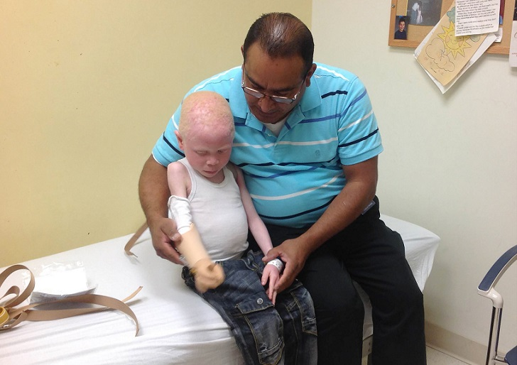 Трагические истории танзанийских альбиносов