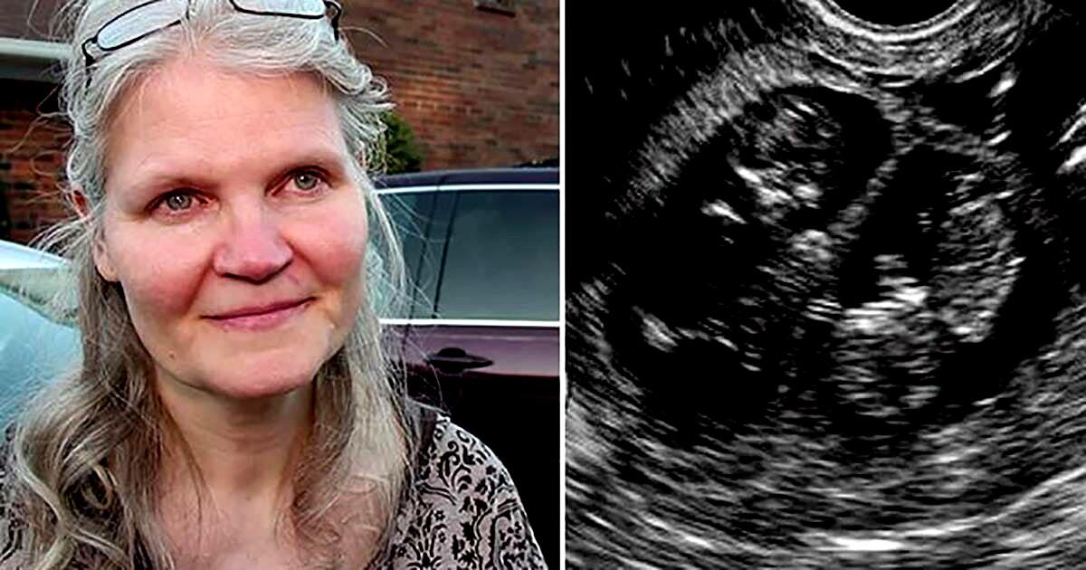 Во время родов доктор вдруг …