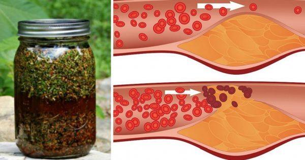 Укроп, мёд и валериана. Всего 1 столовая ложка сотворит чудо с твоими сосудами.