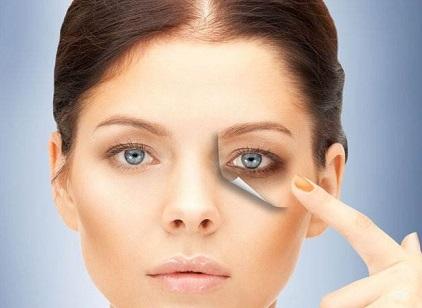 6 причин тёмных кругов под глазами, не связанных с недосыпанием