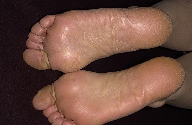 Эффективное народное средство от грибка ног