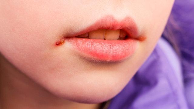 Пятерка заболеваний, которыми можно заразиться через поцелуй
