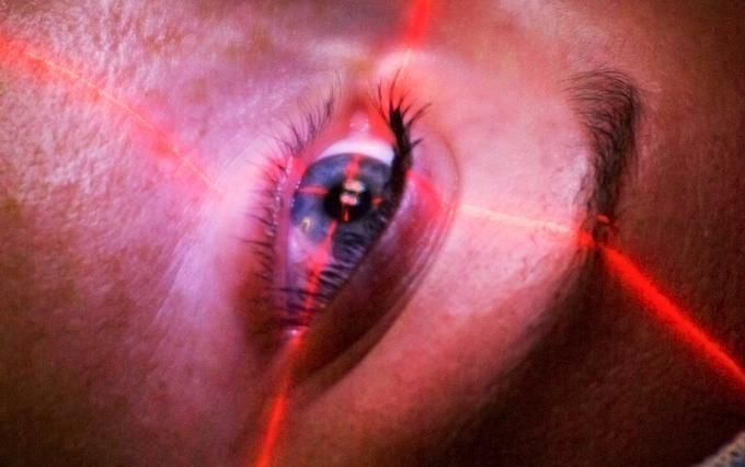 Чем нас лечат: лазерная коррекция зрения здоровье,зрение,лазерная коррекция,медицина,офтальмология