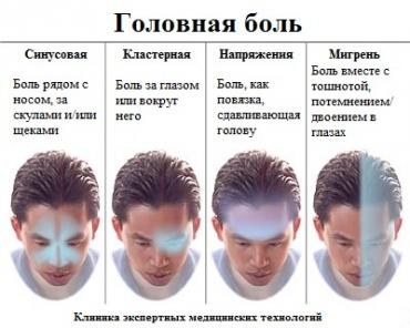 виды_головной_боли