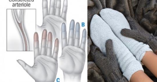 Вот, что холодные руки и ноги могут сказать о вашем здоровье