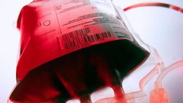 Группы крови: почему они разные и как влияют на нашу диету и болезни группа крови,история,кровь,медицина,наука