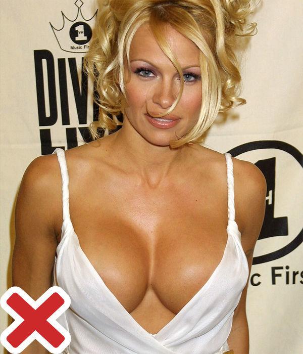 Памела Андерсон - грудь после пластики