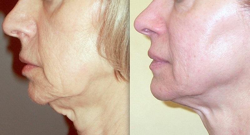 Всего 15 минут утром и вечером, и ваше лицо будет выглядеть лучше, чем в 25 лет