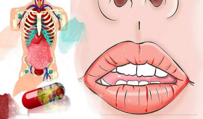 Как ваше тело просит витамины? Десять признаков, которые мы игнорируем