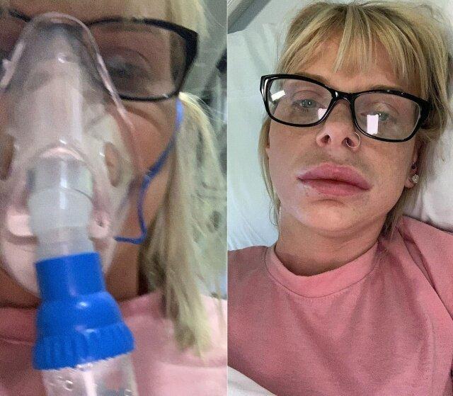 """""""Горшочек, не вари!"""": девушка показала эффект помады """"для увеличения губ"""" аллергическая реакция, аллергия, губы, история из жизни, косметология, помада, увеличение губ"""