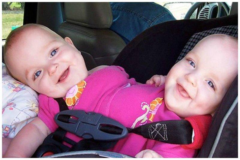 Разделение сиамских близнецов - жизнь до и после
