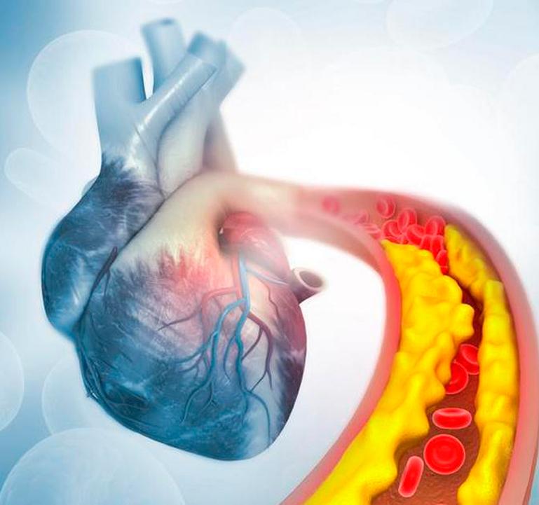 Как снизить уровень «плохого» холестерина и повысить уровень «хорошего» здоровье,холестерин