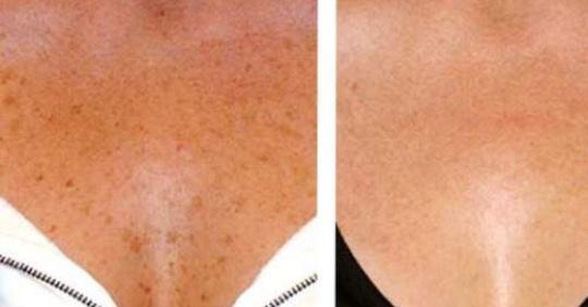 3 природных способа устранения коричневых пятен на вашей коже