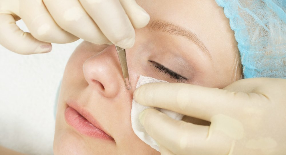 Расширенные поры на лице - причины появления и способы лечения красота,полезные советы