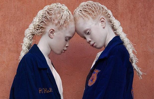 близнецы_4