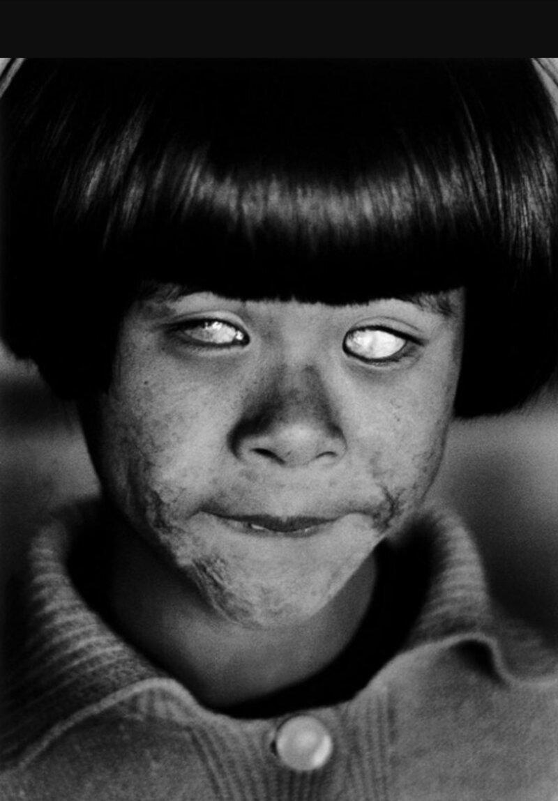 Так выглядят глаза человека который видел вспышку атомного взрыва #Фотографии, #история, #факты, .война