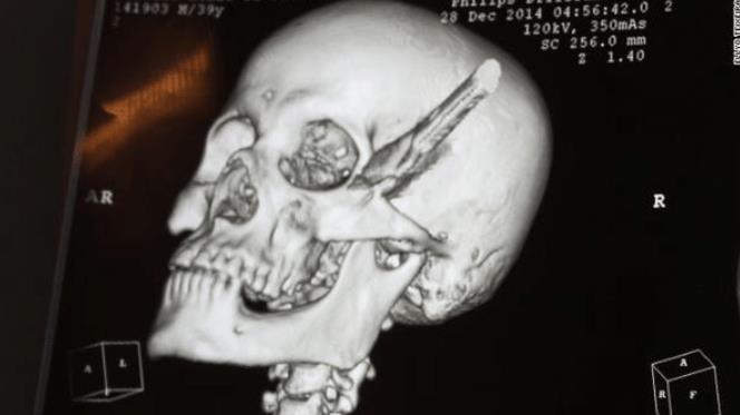 «В смысле, он еще жив?!». Медики делятся историями об удивительных пациентах, которые выжили, хотя по всем законам логики должны были отправиться в морг