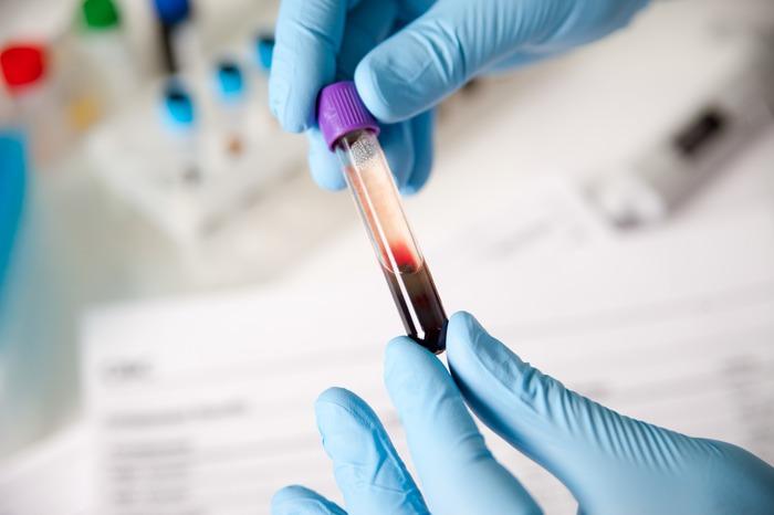 Как делают общий анализ крови