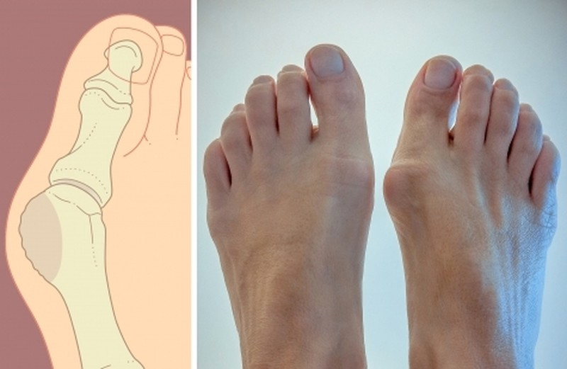 Косточка на ноге: как убрать косточку на большом пальце ноги