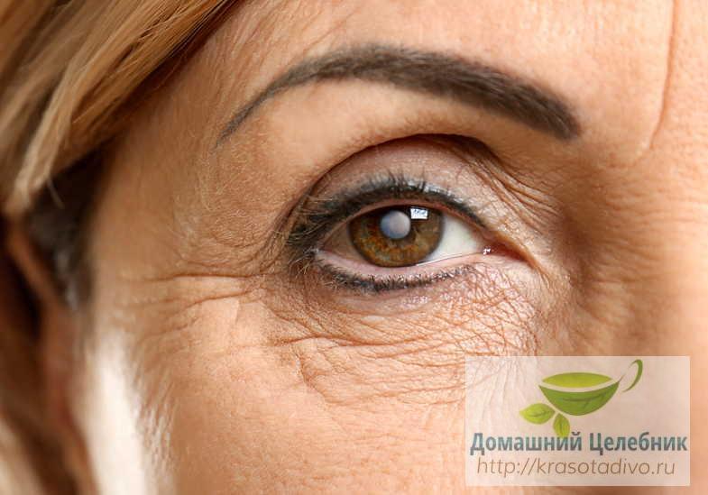 5 растений от катаракты. Эта болезнь поражает 55% людей после 50 лет