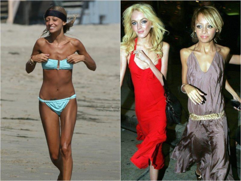 Звезды, которые столкнулись с анорексией