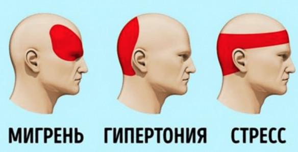 За 5 минут избавиться от головной боли без таблеток? Это просто