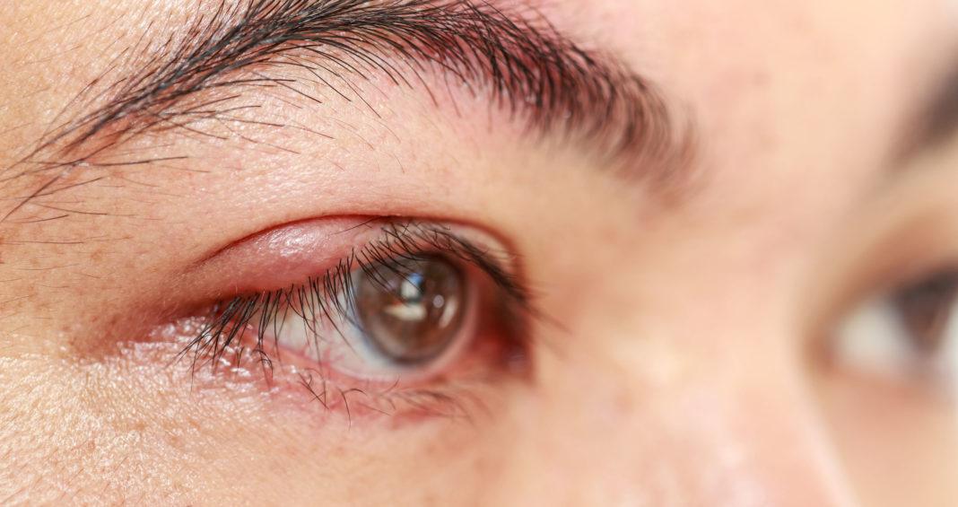 Как убрать чирей на глазу? болезни,здоровье,офтальмология,чирей на глазу