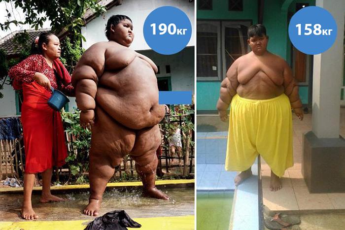 Самый толстый мальчик в мире похудел на 80 килограммов