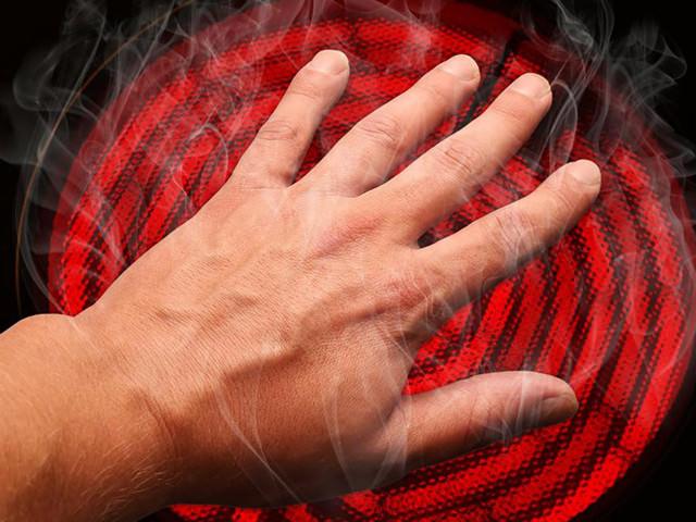 Ожоги. Народные методы лечения ожогов (оказание первой помощи)