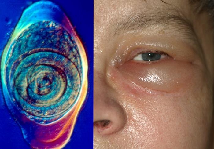 Деликатесная паразитология: трихинеллез. Медицина, Длиннопост, Паразиты, Болезнь, Трихинеллез, Scientaevulgaris