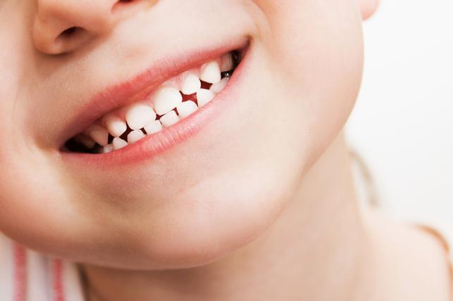Скрип зубами: причины и лечение болезни,бруксизм,дети,здоровье