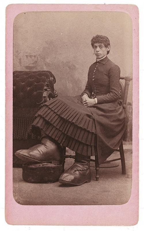 """Родившаяся с красивым лицом и гигантскими ногами Фанни Миллс имела приданное 5000 $ наличными и """"процветающую ферму"""" в штате Огайо, доставшуюся ей от отца исторические снимки, странности, страшно, фото, цирк уродов"""