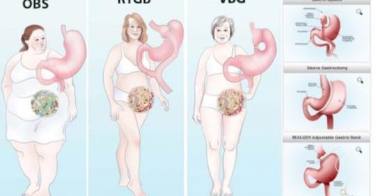 Является ли операция по уменьшению веса правильным выбором?