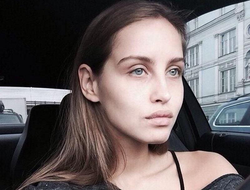 Анастасия киушкина до пластики губ фото