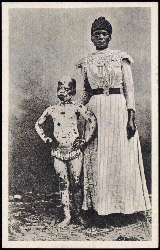 Вот и знаменитое витилиго, с которым сегодня становятся моделями исторические снимки, странности, страшно, фото, цирк уродов