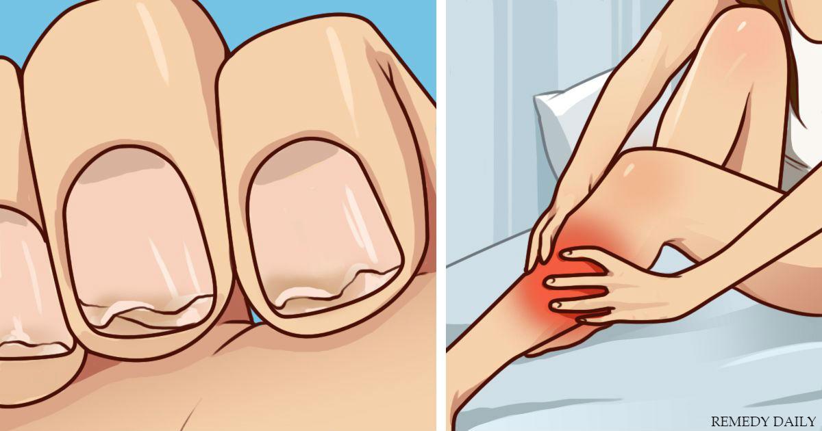 8 признаков, что вашему телу не хватает кальция