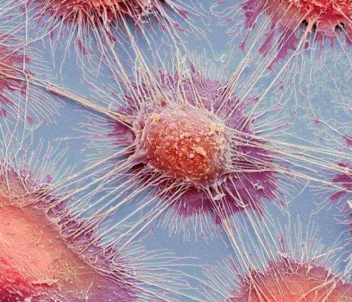 Столь похожий на полотно экспрессиониста, этот кадр представляет собой нечто совсем другое – раковые клетки. интересное, интересные снимки, снимки