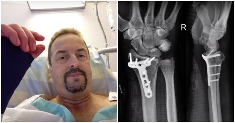 Пострадавший вместе с пилотом отправился в больницу, где у него диагностировали перелом запястья правой руки и разрыв сухожилия бицепса левой руки. В ходе операции в руку главного героя вставили титановую пластину в мире, видео, дельтоплан, повезло, турист, швейцария, экстрим