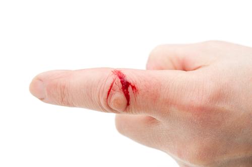 любом к чему мелкие порезы пальцев рук опт для лета