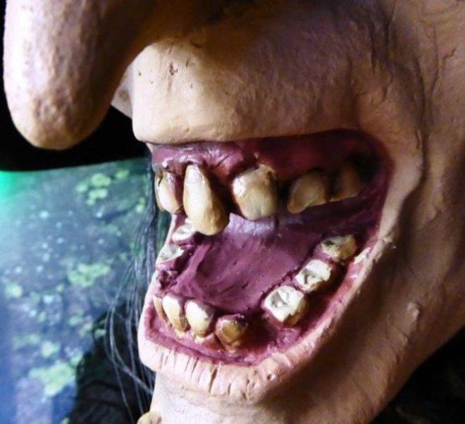Поврежденная челюсть