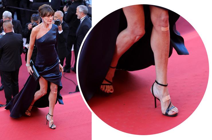Босоножки на тонких ремешках: как избежать ошибок при выборе обуви