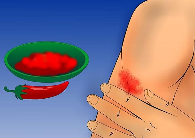 Первая помощь: как быстро остановить кровь?