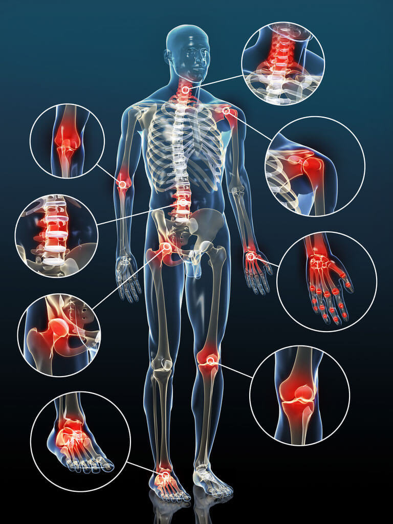 Упражнения, которые полезны при артрите