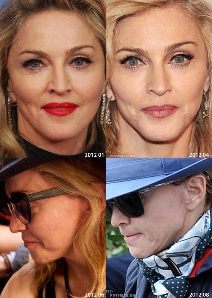 Пластическая хирургия: Мадонна