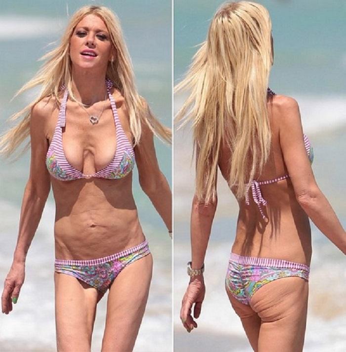 фото грудь похудевшей девушки саша